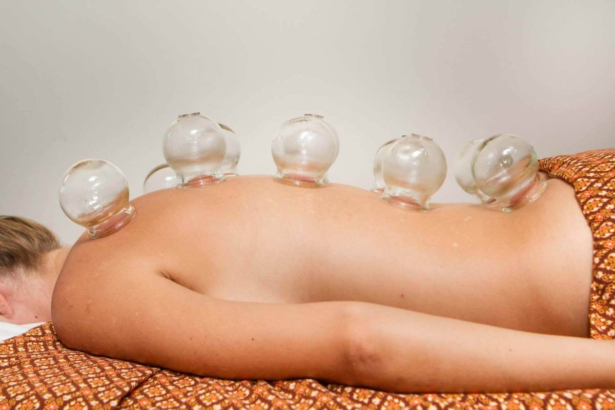 One of the hotel guests at Kamalaya Koh Samui during a cupping treatment
